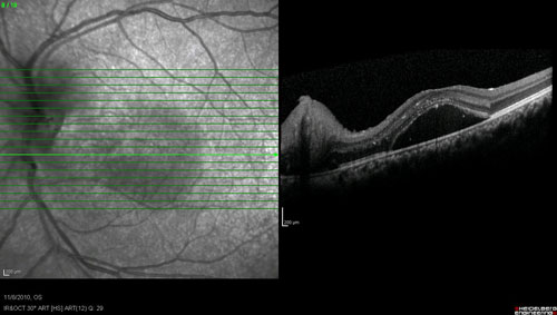 Acute Macular Neuroretinopathy treatment in Fort Myers, Florida