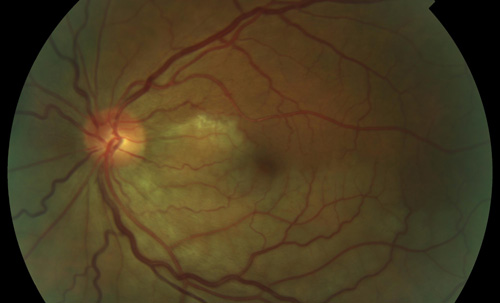 Branch Retinal Artery Occlusion treatment in Fort Myers, Florida