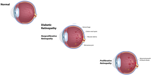 Diabetic Retinopathy treatment in Fort Myers, Florida