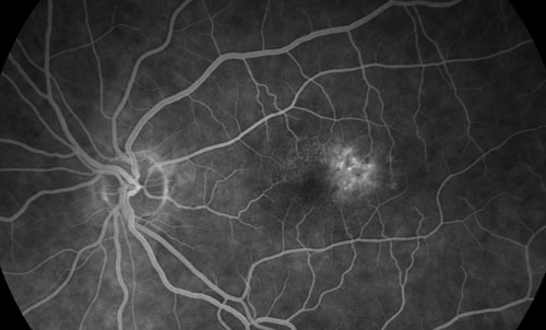 Macular Telangiectasias treatment in Fort Myers, Florida