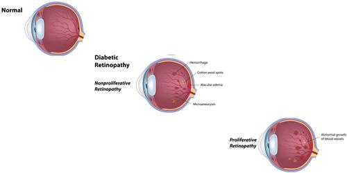 Diabetic Retinopathy treatment in Bonita Springs FL
