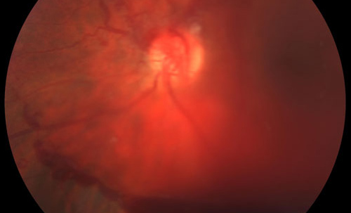 Leukemic Retinopathyy treatment in Bonita Springs FL