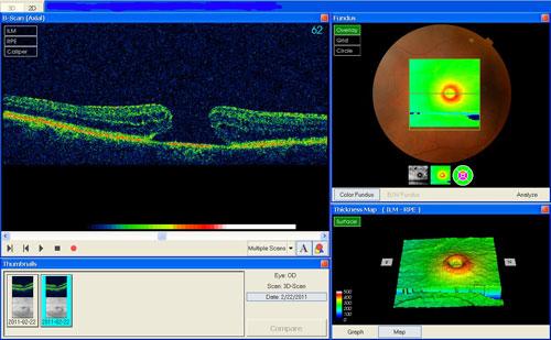 Macular Hole treatment in Bonita Springs FL