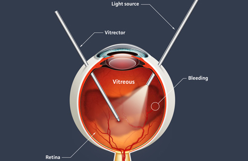 Retina treatment in Bonita Springs FL