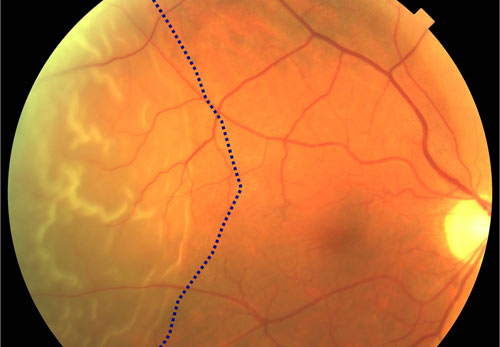 Retinal Detachment treatment in Bonita Springs FL