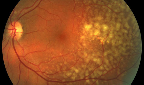 macular dystrophy retina - photo #15