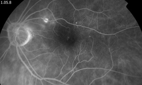Retinal Macroaneurysm