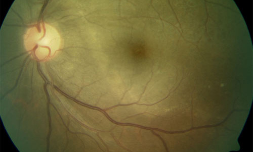 Retinal Syphilis and Tuberculosis  treatment in Bonita Springs FL
