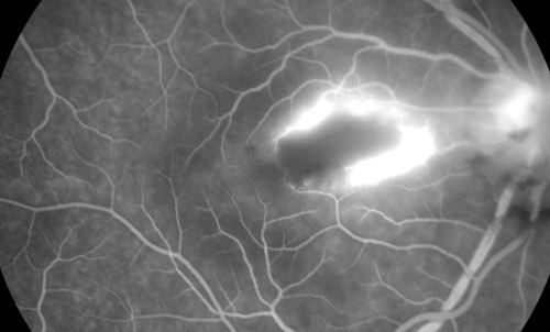 Retinal Toxoplasmosis treatment in Bonita Springs FL
