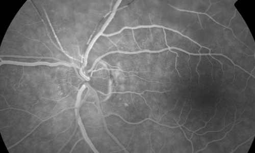 Retinal Vasculopathy treatment in Bonita Springs FL