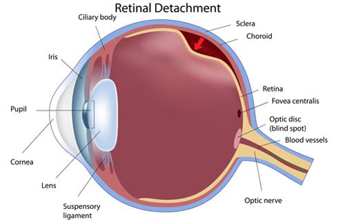 Retinal disorders symptoms
