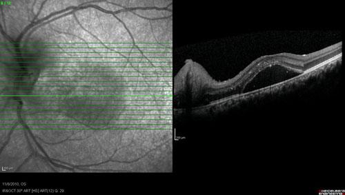 Acute Macular Neuroretinopathy treatment in Naples, Florida