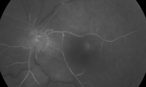 Central Retinal Artery Occlusion treatment in Naples, Florida