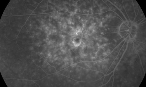 Macular Dystrophy treatment in Naples, Florida