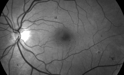 Retinal Disease from Pregnancy treatment in Naples, Florida