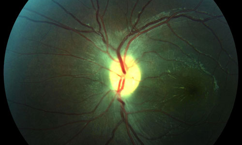 Retinal Infections treatment in Naples, Florida