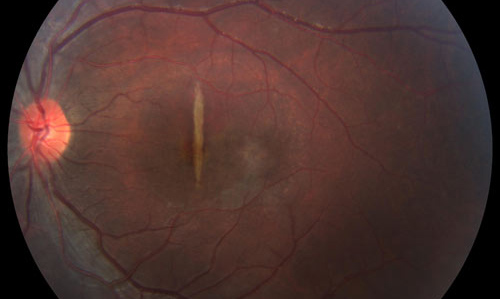 Retinal Inflammation treatment in Naples, Florida