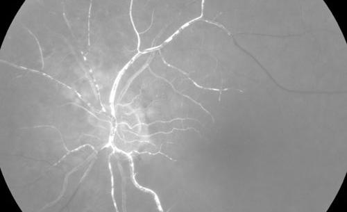 Retinal Ischemia treatment in Naples, Florida