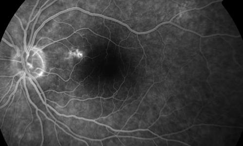 Serous Detachment of Retina treatment in Naples, Florida