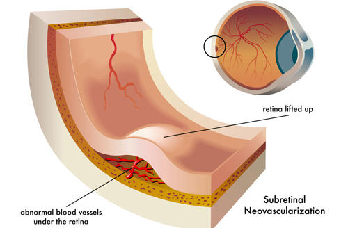Retina treatment in Naples, Florida